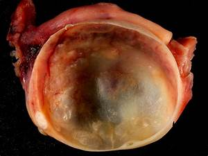 Diagram Of Ovarian Cyst