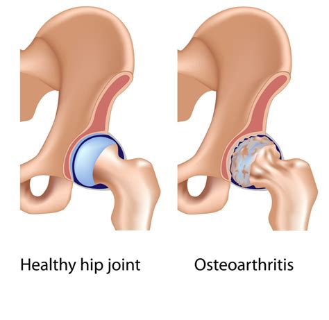 what is typical rehabilitation following a total hip
