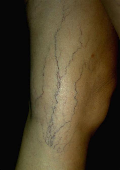 bulging veins   dangerous   ugly fitnesscom