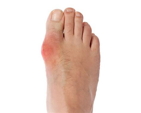 gout   carb diet doctor