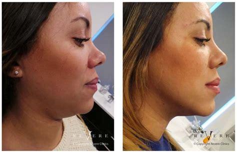 AQUALYX - Laserderm Clinics - Foremost skin clinic in Nigeria