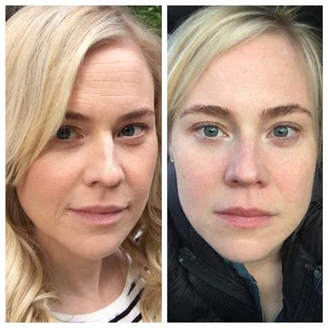 Kristin Booth (2 week before and after) – Benir Beauty