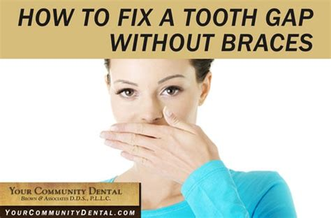 how to fix gap between your community dental wilmington nc dentist in