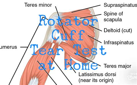 Rotator Cuff Tear Test At Home - Access Health ...