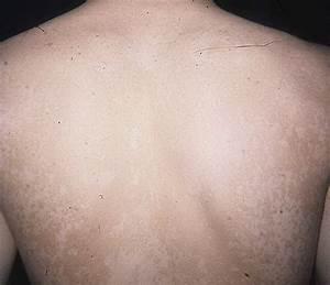 Самые эффективные средства для похудения с имбирем