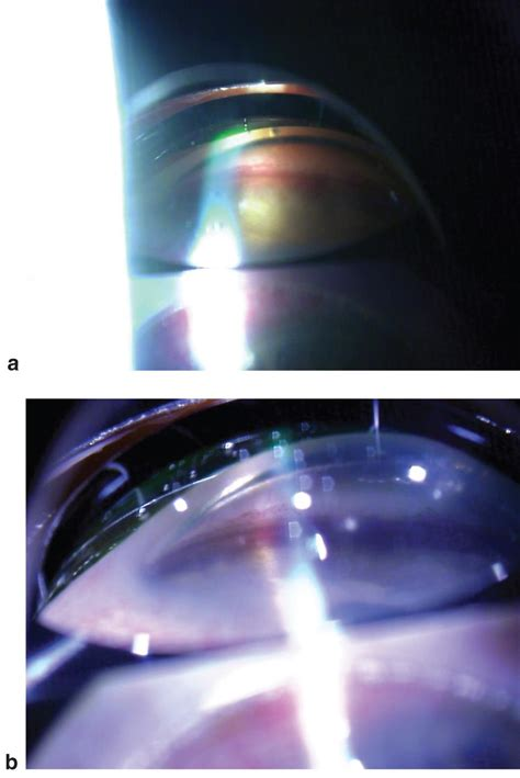 reverse pupillary block american academy  ophthalmology