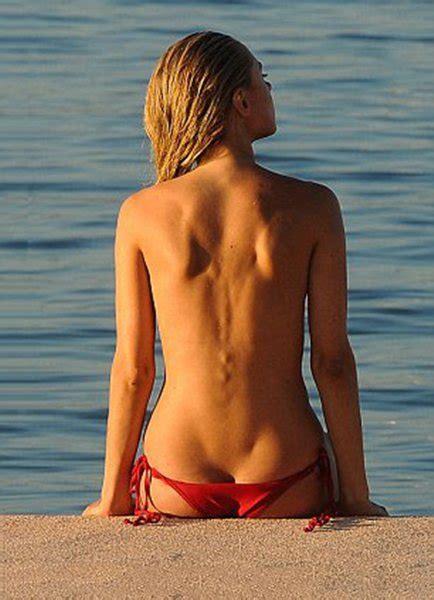 Kimberley Garner Topless Sunbathing In Mykonos Scandal