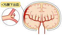 くも膜 下 出血 前兆