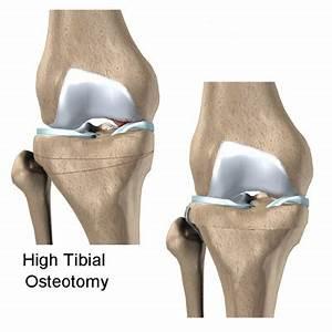 American Academy of Orthopedic Surgeons   Osteoarthritis Blog