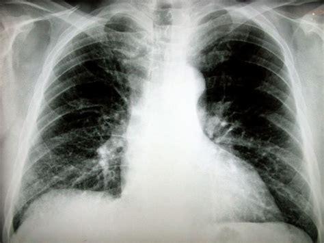 airlife te dice tipos de cancer huesos de la