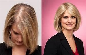 Avant Après : women 39 s hair loss hairfax ~ Melissatoandfro.com Idées de Décoration