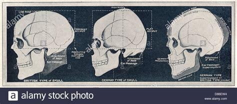 Comparison Of British German Skull Shapes Ww1 Stock Photo