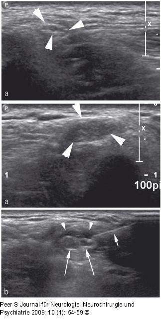 abbildung   nervus cutaneus femoris lateralis