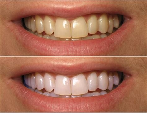 Home Teeth Whitening coconut teeth whitening how to whiten teeth with