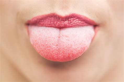 Yet the burning and tingling greg felt on his tongue and the roof of his mouth persisted. Remedy for Salt Bumps on Tongue   LEAFtv