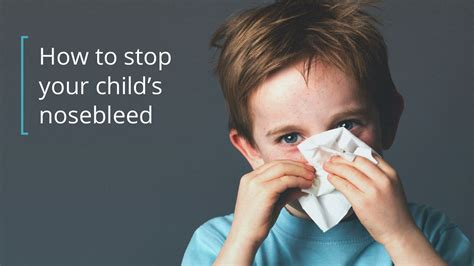 Nosebleeds In Children How To Stop And Prevent