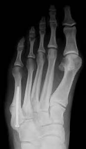 The Foot and Ankle Tribune: August 2013