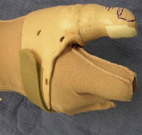 opposition splint  partial thumb amputation  case