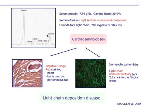 light chain disease light chain amyloidosis decoratingspecial