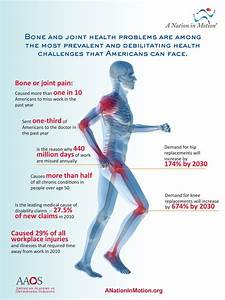 The Demand For Knee Replacement Surgery Will Increase By