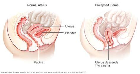 Surgery to make penis longer
