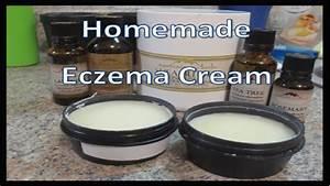 Homemade Eczema Cream - YouTube