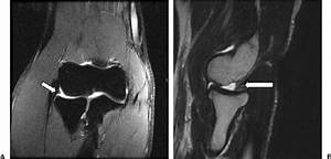 Normal Variant Of The Elbow  The Lateral Synovial Fringe