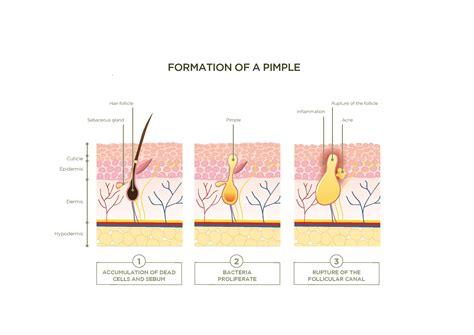blog the formation of a pimple did you know that
