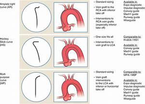 Guide Catheter Selection