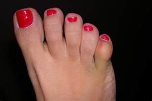 Side of Pinky Toe Pain