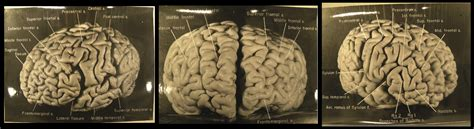 The Whereabouts Of Dr Einstein's Brain • Damn Interesting