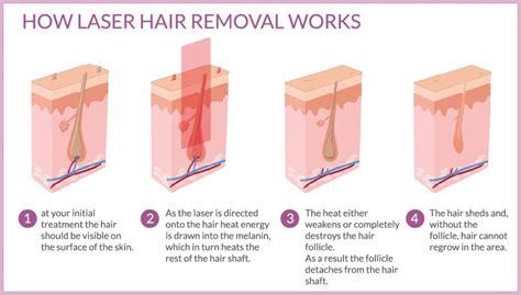 elite laser hair removal
