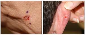 ... Skin Cancer (PDQ®)—Health Professional Version - National Cancer Skin Cancer