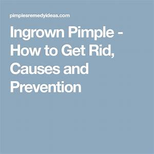 Ingrown Pimple  U2013 How To Get Rid  Causes And Prevention