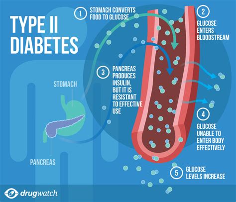 Is Type 2 Diabetes Curable? (8 Things You Should Know. Community Colleges In Tulsa Amazon Gpu Cloud. Hotels Around Heathrow Airport London. Cosmetic Dentist In Houston Aetna Life Ins. Social Media Risk Assessment. Best Outdoor Home Surveillance System. Call Management System Annandale Nova Address. Labiaplasty Covered By Insurance. Chase Sapphire Vs Preferred Avenger The Car