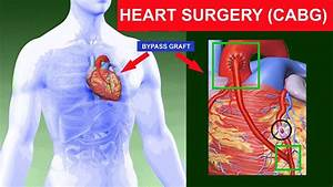 Heart Surgery  Coronary Artery Bypass Graft  Cabg