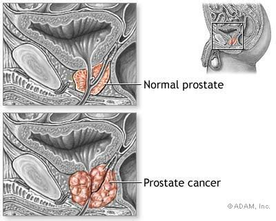 prostate cancer sexinfo