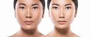53 Most Popular Plastic Surgery Procedures In Korea