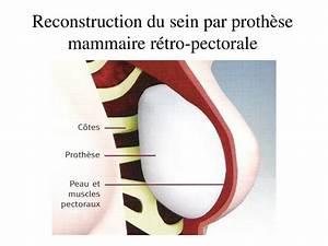 Rétro-mammaire : définition de RÉTRO-MAMMAIRE , adjectif