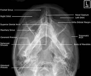 28 Best Anatomical Positioning For Xray Images On