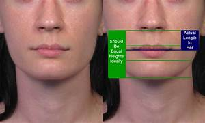 Subnasale Upper Lip Lift Case Example 2 By Dr  John