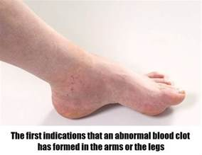 Image result for people with blood clots