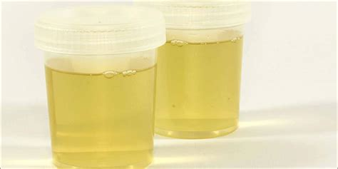 3 Brands Of Synthetic Urine And How To Fully Utilize Them