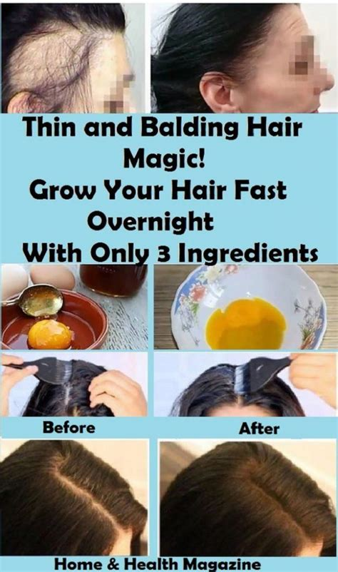 As we age our hair tends to become thin and dry, however