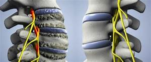 Артроз крестца позвоночника симптомы лечение