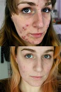My Disfiguring Painful Acne Disappeared After I Went Vegan
