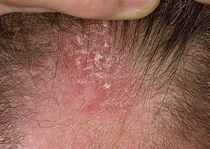 Seborrheic dermatitis and hair loss