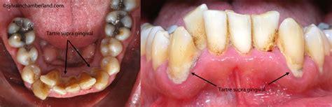 piercing de la langue dr sylvain chamberland orthodontiste