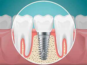 Benefits Of Dental Implants  U2022 Placentia Oral Surgery