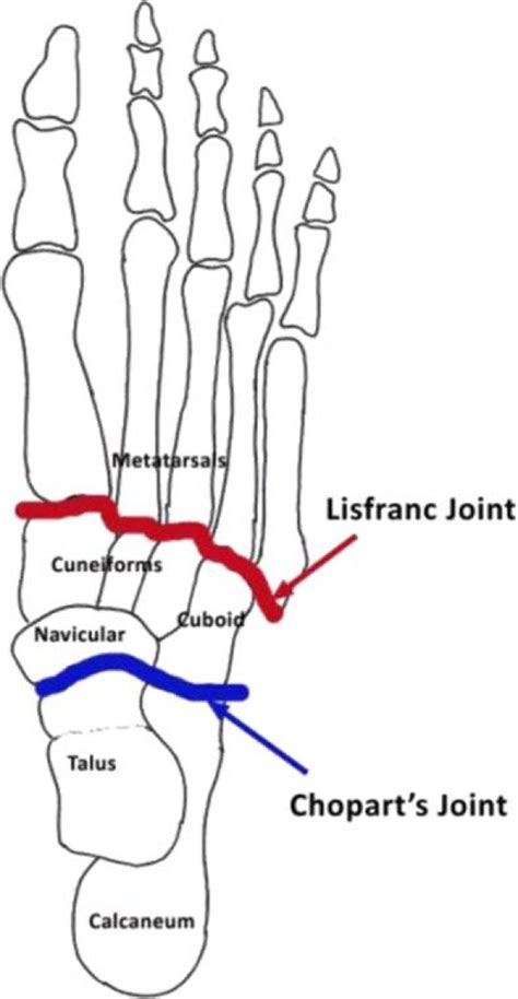 Diagram Demonstrating The Lisfranc's And Chopart's Joints